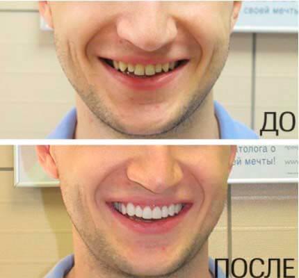 как установить виниры на свои кривые зубы